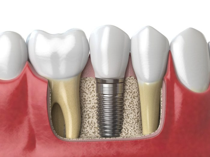 dental implants reviews in Houston